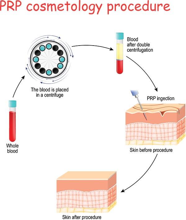 PRP Cosmetology Procedure